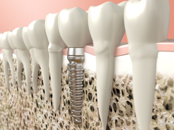dental implant worcester